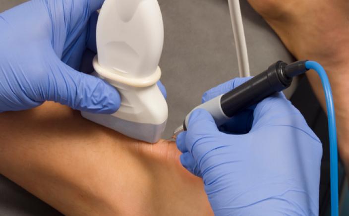 Volg de opleiding percutane electrolyse therapie